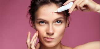 Como evitar a acne solar